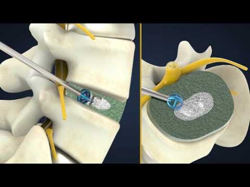 Medical 3D animation. Implanted in the middle of the circular disc. New surgical treatment method. France